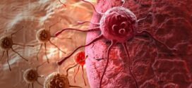Безплатни прегледи за рак на гърдата в Поморие